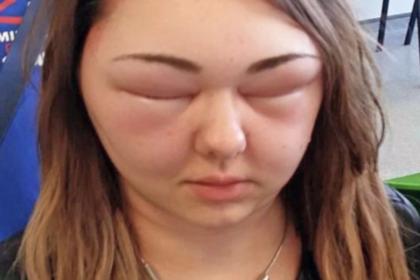 ослепла
